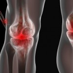 what_is_joint_pain